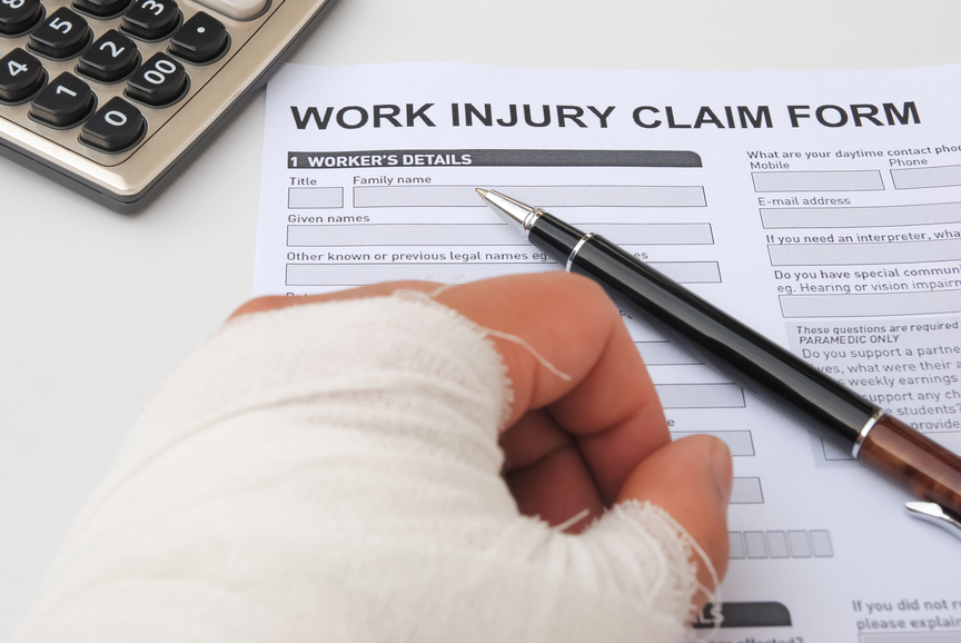About 17 percent of all lost workdays related to injuries are due to workplace hand injuries. Here are the facts about the incidence and causes of workplace hand injuries.